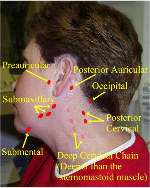 how to get rid of swollen lymph nodes under jaw
