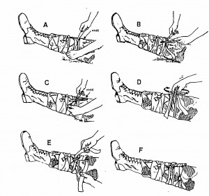 Figure 2-24. Applying an improvised tourniquet to a limb.