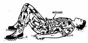 Figure 4-1. Casualty with an open abdominal wound positioned with his knees flexed.