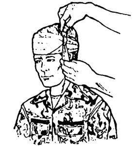 Figure 5-3. Tying the tails on the side of the head (wound on forehead).