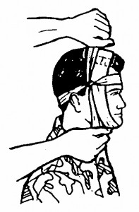 Figure 5-6. Tying the tails on the side of the head (wound on top of head).