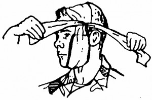 Figure 5-8. Crossing the tails (wound on cheek).