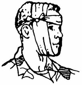 Figure 5-9. Tails tied in a non-slip knot and ends tucked (wound on cheek).