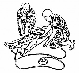 Figure 7-5. Securing one leg of the MAST.