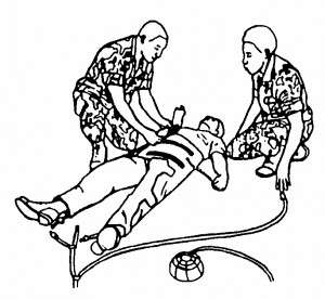 Figure 7-6. Securing the abdominal section of the MAST.