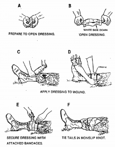 Figure 2-8. Applying and securing a field dressing to a wound on a leg.