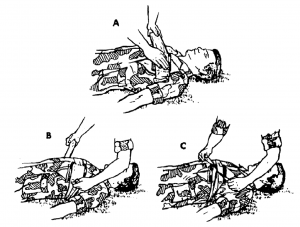 Figure 3-5. Applying a field dressing to an open chest wound.