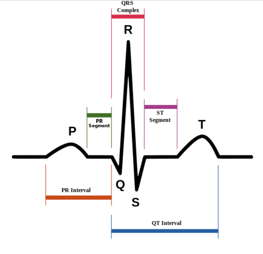 ECG Intervals ecg intervals cardiac rhythm interpretation ecg diagram at aneh.co