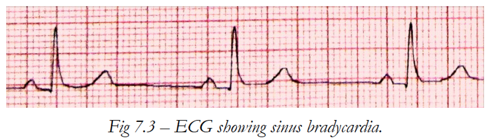 ECG showing sinus brad...