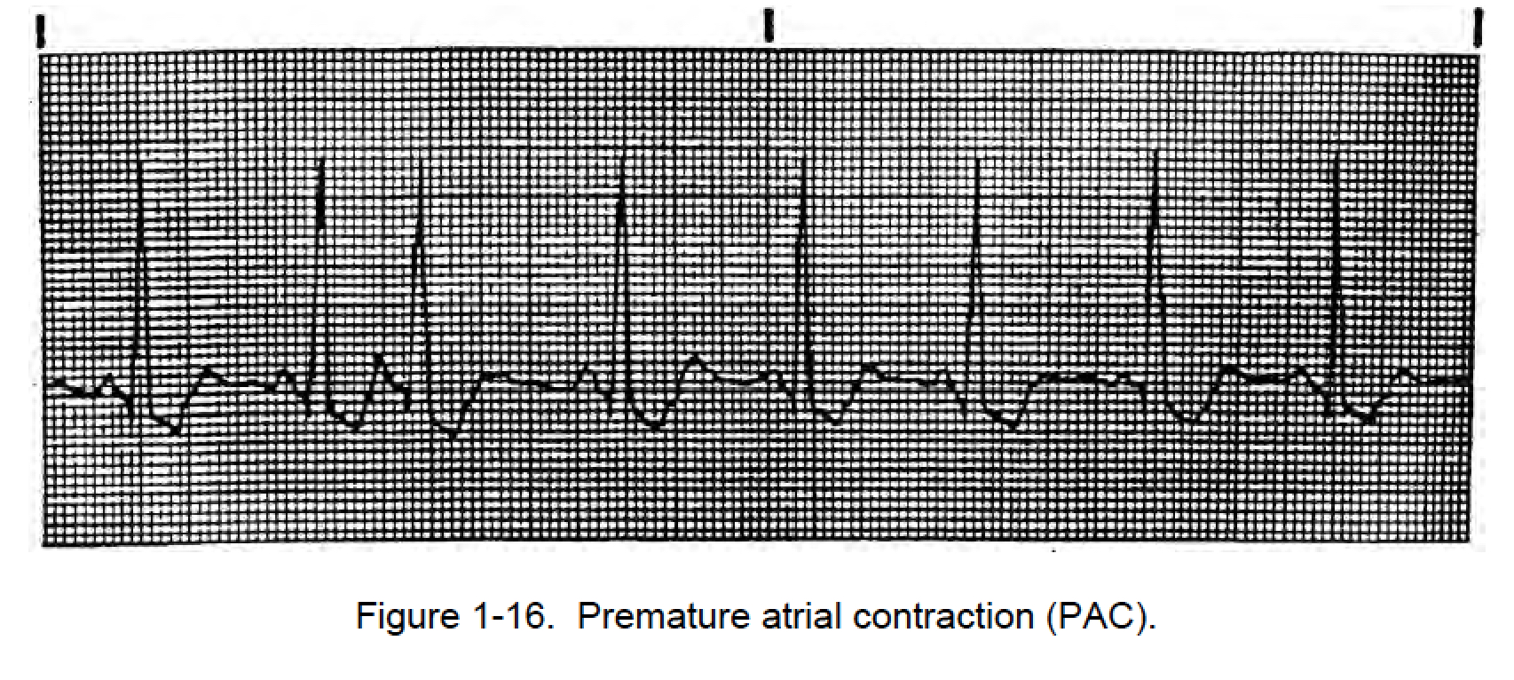 how to understand premature atrial contraction on ecg
