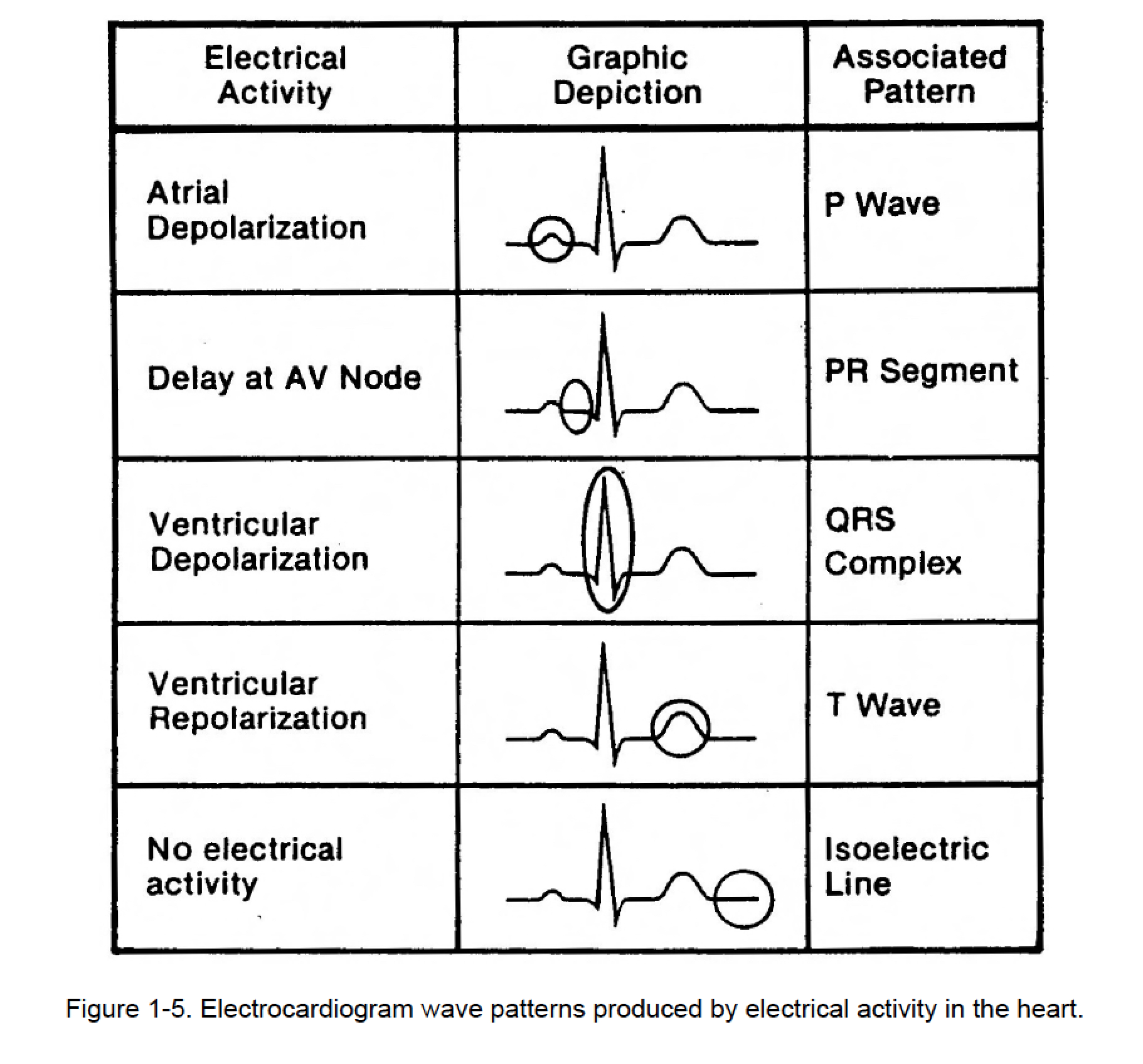 1-05. GRAPHIC DISPLAY OF ELECTROCARDIOGRAM (C)
