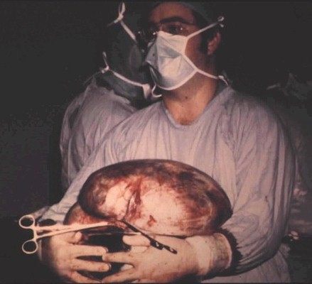 Ovarian Neoplasm
