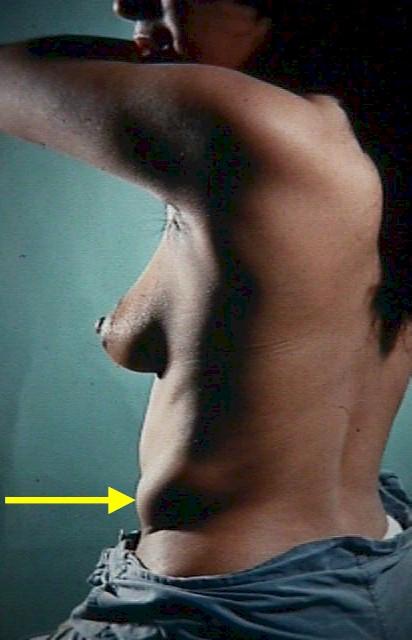 Supernumerary Breasts-6397