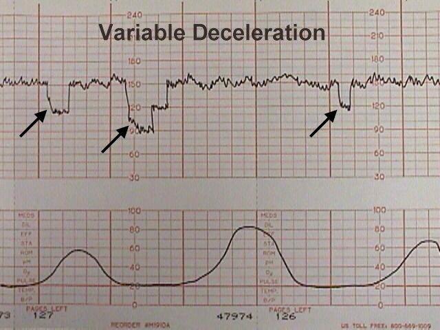Electronic Fetal Heart Monitoring