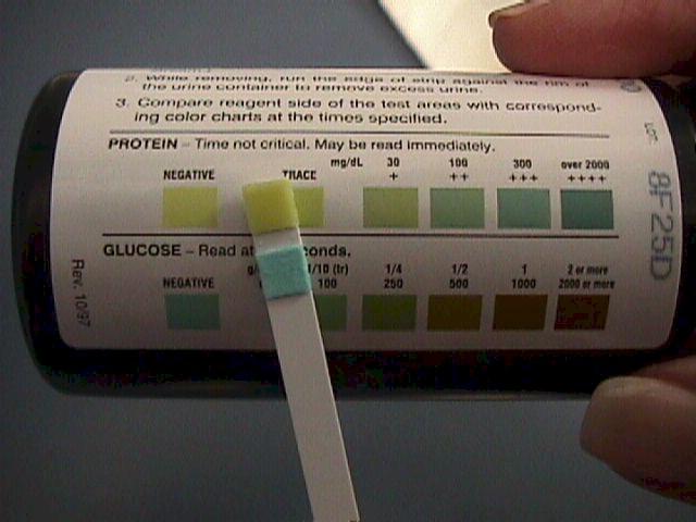 Беременность анализ мочи как собирать