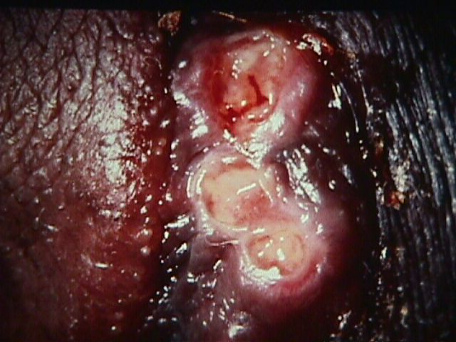 Seems remarkable Lesions vagina vulva join