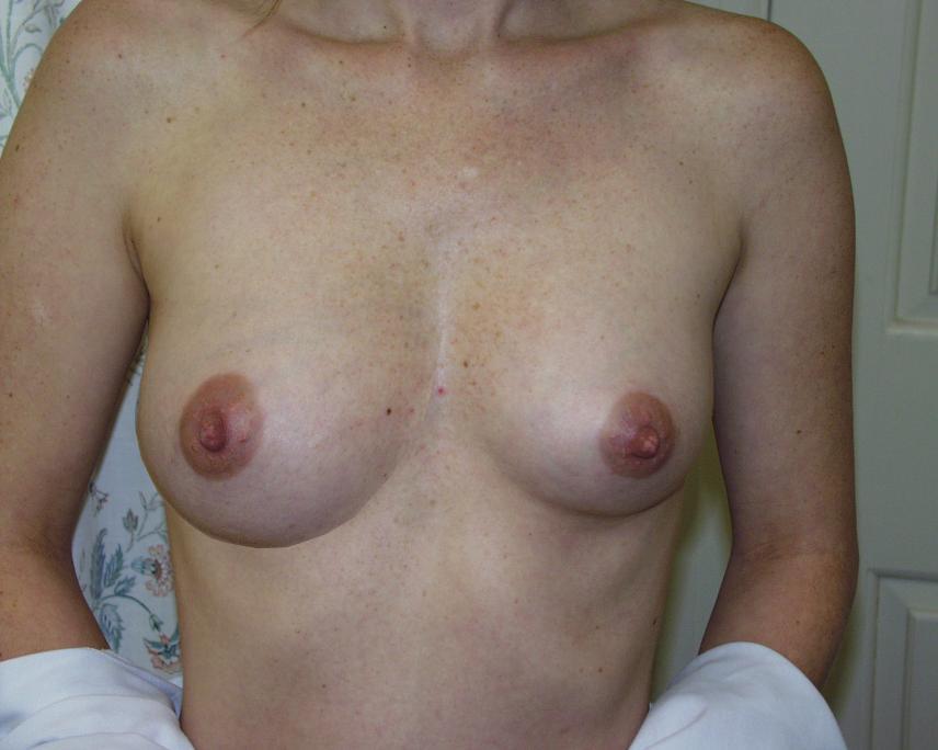 young-female-breast-development-nude-naked-black-girl-fuck-paki