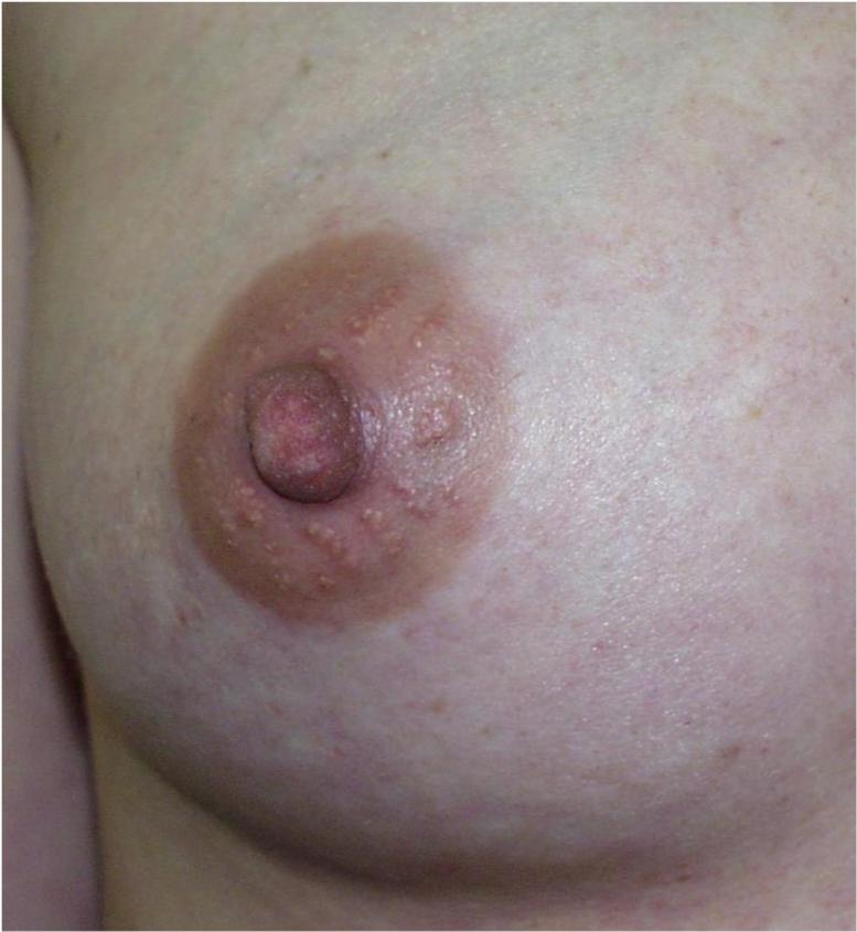 Breast trimester in first tenderness