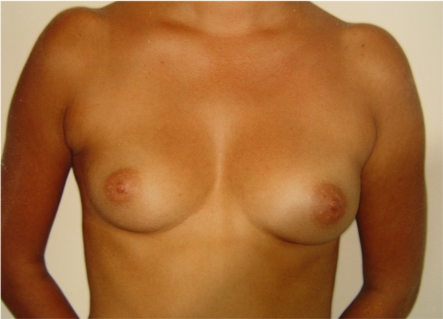 Breast Cancer: Symptoms, Causes, Treatments and More