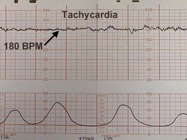 Тахикардия при беременности 34 недели