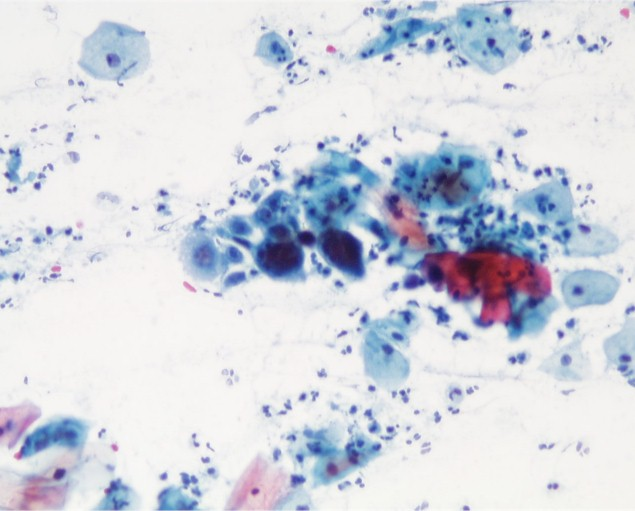 ... inclusions, the cytologist may report