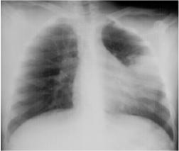 Left Lingular Pneumonia
