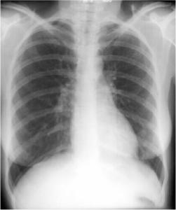 Left Lower Lobe Pneumonia, Anterior Segment