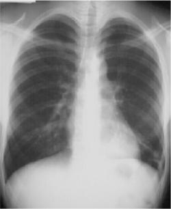 Left Lower Lobe Pneumonia, Posterior Segment