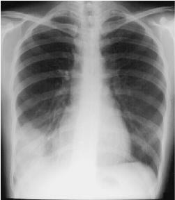 Right Lower Lobe Pneumonia