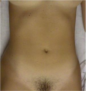 Internal vagina pictures gynecology