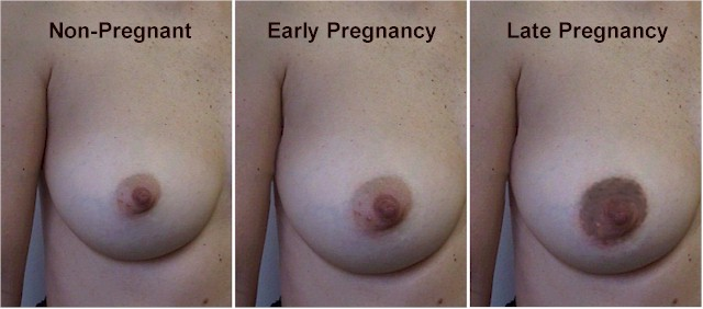 Darkened Areolas During Pregnancy