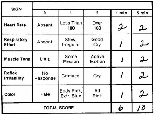 Apgar Scale Score 4