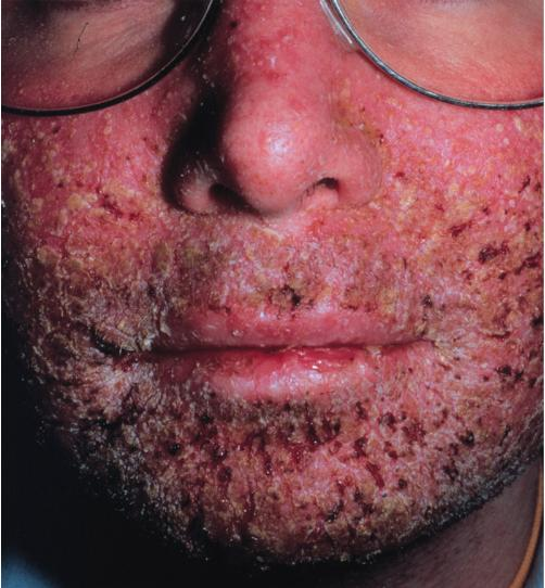is lupus  contagious