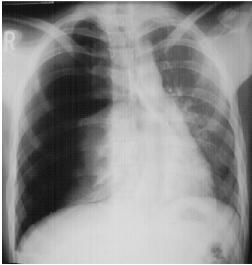 Needle a Tension Pneumothorax