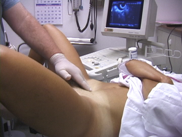 pelvic exam variations video