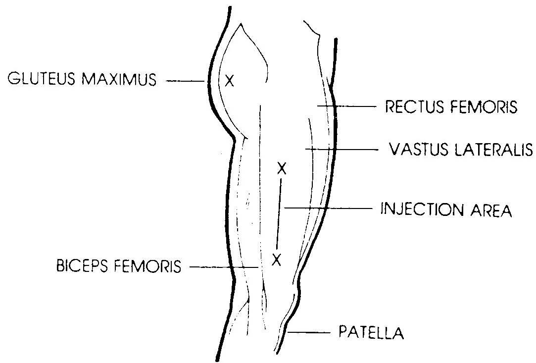 2.03 PROCEDURE FOR ADMINISTERING AN INTRAMUSCULAR