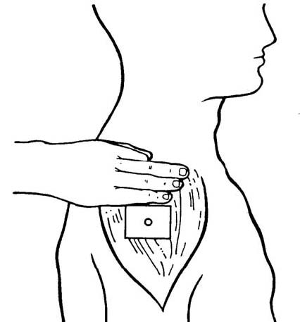 2 03 PROCEDURE FOR ADMINISTERING AN INTRAMUSCULAR INJECTION
