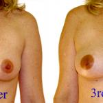 Leaking Breasts Postpartum
